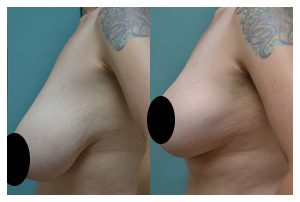 Breast Lift Before and After Widget