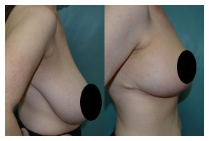 Breast Reduction Before and After Widget