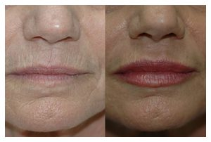 Dermabrasion Before and After Widget