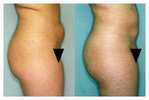 Liposuction Before and After Widget