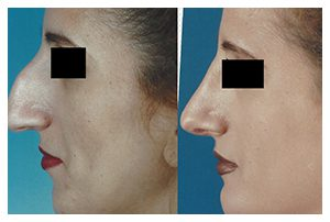 Patient B Rhinoplasty Before and After
