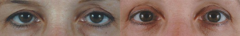 Patient 5 Blepharoplasty Before and After