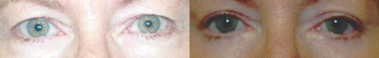 Patient 6a Blepharoplasty Before and After