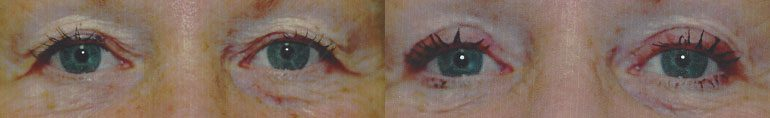 Patient 7a Blepharoplasty Before and After