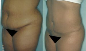 Patient 6a Liposuction Before and After