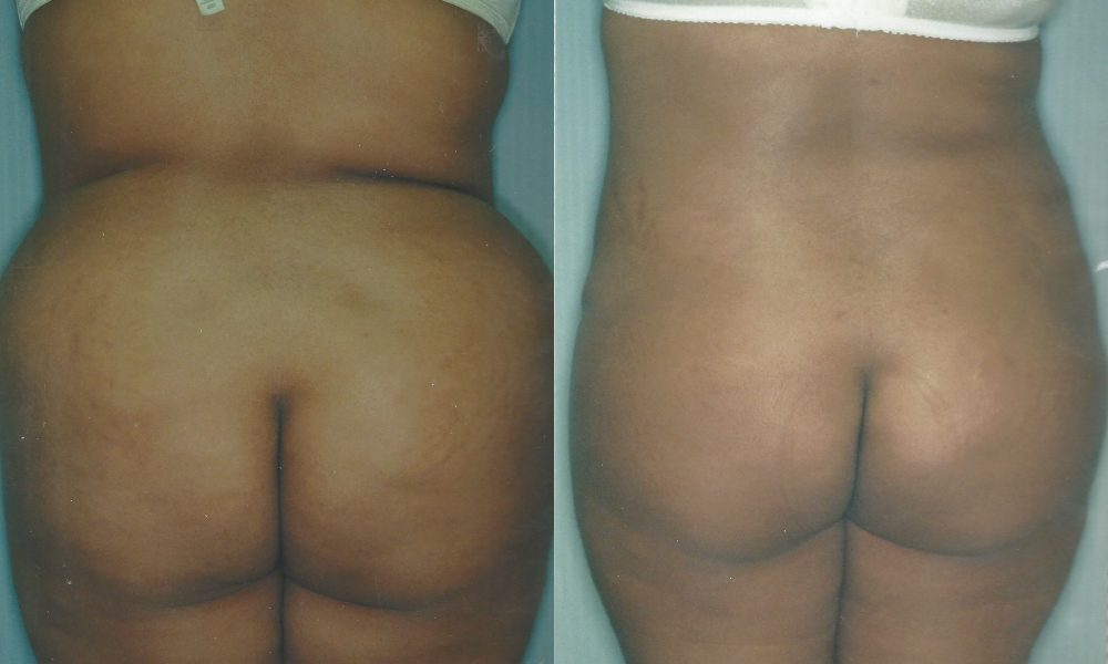 Patient 6b Liposuction Before and After