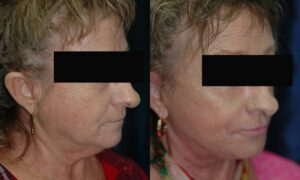 Patient 8b Facelift Before and After