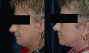 Patient 8c Facelift Before and After