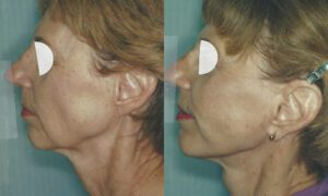 Patient 7c Facelift Before and After
