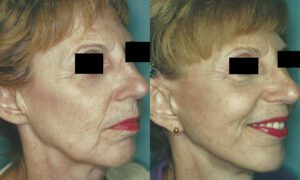 Patient 7b Facelift Before and After
