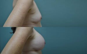 Patient 3d Breast Augmentation Before and After