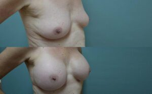 Patient 3e Breast Augmentation Before and After