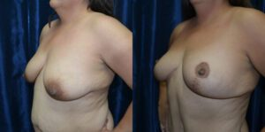 Patient 3b Breast Lift Before and After