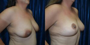 Patient 3d Breast Lift Before and After