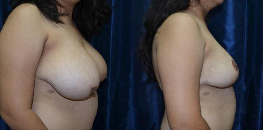 Patient 9a Breast Reduction Before and After