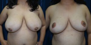 Patient 9b Breast Reduction Before and After
