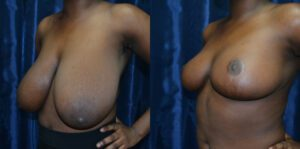 Patient 8c Breast Reduction Before and After