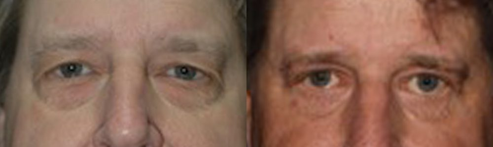 Patient 9a Blepharoplasty Before and After