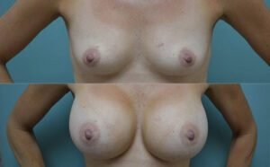 Patient 2c Breast Augmentation Before and After