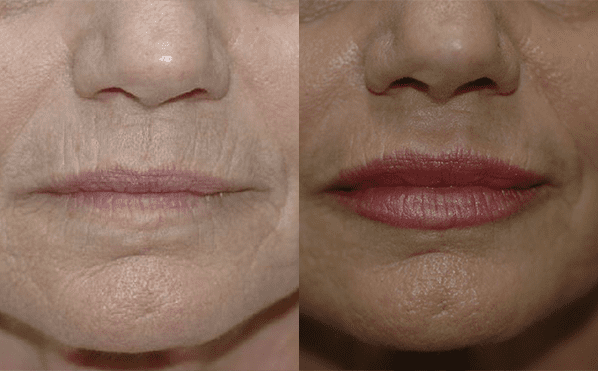 Patient 1a Dermabrasion Before and After