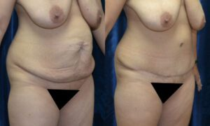 Patient 11c Tummy Tuck Before and After