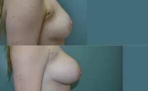 Patient 8c Breast Augmentation Before and After