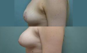 Patient 8e Breast Augmentation Before and After