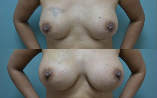 Patient 13 Breast Augmentation Before and After