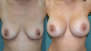 Patient 1a Breast Augmentation Before and After