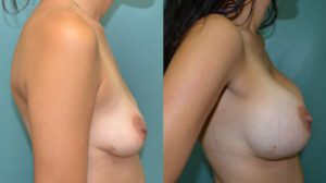 Patient 1e Breast Augmentation Before and After