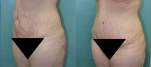Patient B Tummy Tuck Before and After View 2