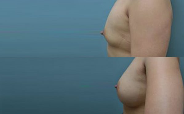 Patient 9a Breast Augmentation Before and After