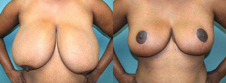 Patient 5a Breast Reduction Before and After
