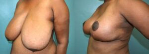Patient 5b Breast Reduction Before and After