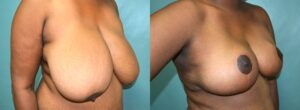 Patient 5e Breast Reduction Before and After
