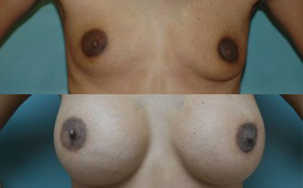 Patient 6 Breast Augmentation Before and After