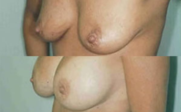 Patient 7 Breast Augmentation Before and After