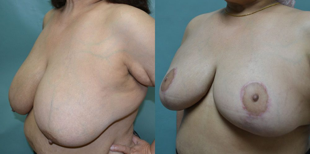 Patient 3a Breast Reduction Before and After