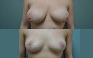 Patient 1a Breast Reduction Before and After