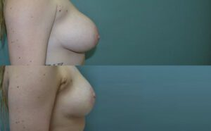 Patient 1d Breast Reduction Before and After