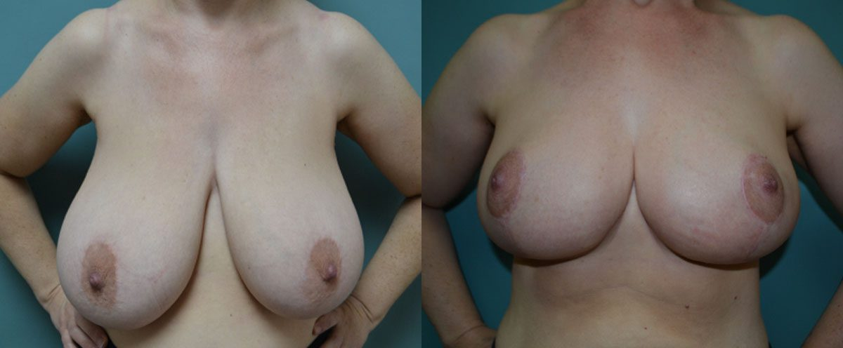 Patient 4a Breast Reduction Before and After