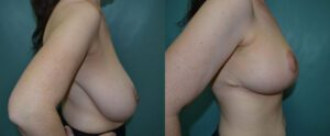 Patient 4c Breast Reduction Before and After