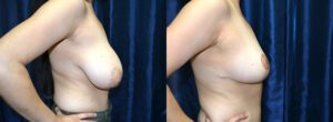 Patient 7e Breast Reduction Before and After