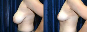 Patient 7c Breast Reduction Before and After