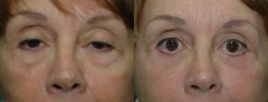 Patient 8a Blepharoplasty Before and After