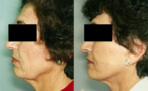 Patient 4 Facelift Before and After