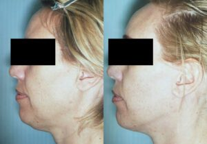 Patient 6c Facelift Before and After