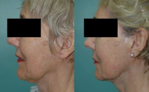 Patient 1b Facelift Before and After