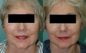 Patient 1a Facelift Before and After