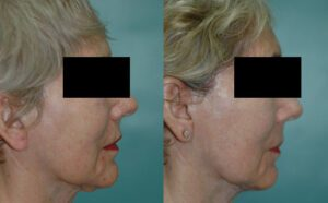 Patient 1d Facelift Before and After